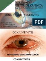 Conjuntivitis y Queratitis