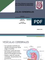 VESICULAS CEREBRALES