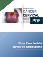 1. Situación actual del cáncer de cuello uterino.pdf