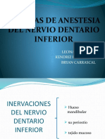 Anestesia Del Nervio Dentario Inferior