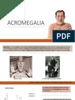 Acromegalia Expo
