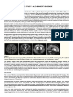 Alzheimer's disease case study