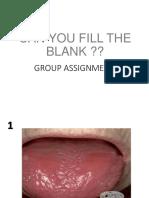 241421_Glossitis, Stomatitis dan Leukoplakia - drg. Cicih.pdf