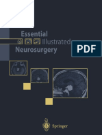 Essential Illustrated Neurosurgery