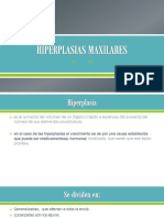 Hiperplasia Gingival Generalizada