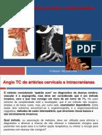 Protocolos de Angio TC Cervical e Intracraniano