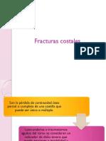 Fracturas_costales