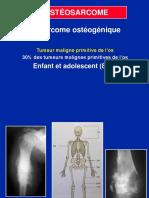 03- Ostéosarcome