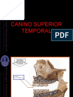 Canino Superior Temporal