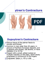 2 Dupuytrens Contracture
