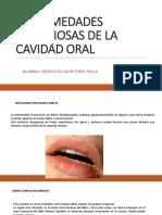 Enfermedades Infecciosas de La Cavidad Oral