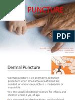 01 Skin Puncture