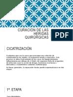 Curacion de Las Heridas Quirurgicas