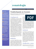 Trombocitopenia en RN