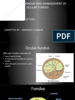 Diseases,Diagnosis and Management of Ocular Fundus