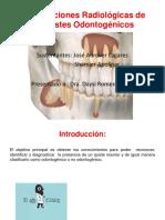 Manifestaciones Radiológicas de Los Quistes Odontogénicos
