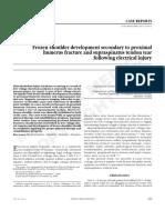 frozen shoulder development  secondary to proximal humerus fract and supraspinatus tendon tear  following electrical injury-Eura Medicophys 43-469-73-2007=Aktas I , akgun K.pdf