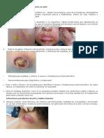 Abordaje Inicial de Las Infecciones en Piel