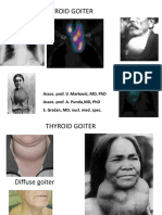 Thyroid Goiter