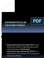 supraventriculartachyarrythmias-140116011607-phpapp01
