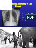 Radiographic Anatomy of the Chest