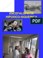 Encefalopatía