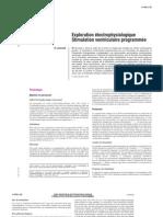 Exploration électrophysiologique - Stimulation ventriculaire