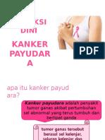 Penyuluhan Kanker Mammae