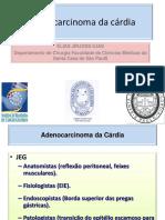 30 06 16Adenocarcinoma Da Cárdia Dr Elias j Ilias