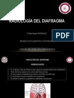 Rx Diafragma