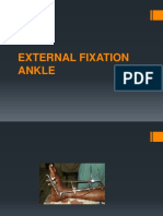 EXTERNAL FIXATION ANKLE.pptx