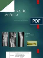 FRACTURA DE MUÑECA TRABAJO.pptx