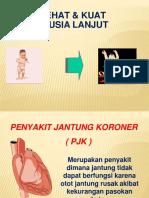 PJK Converted