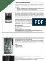 Tipos de Espina Bifida Cerrada