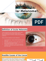 ocular melanoma - lex and tommy