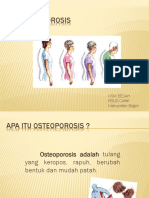 Osteoporosis Ppt