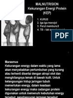 malnutrisi 2014