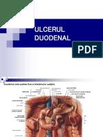 Ulcer duodenal