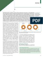 Lancet Retroperitoneal Fibrosis 2006