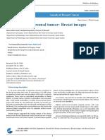 Benign Stromal Tumor Breast Images