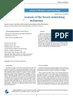 Seborrheic Keratosis of the Breast Mimicking Melanoma
