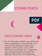 Infecciones Torch