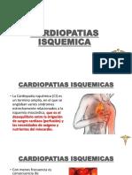 5 CARDIOPATIAS ISQUEMICA.pptx