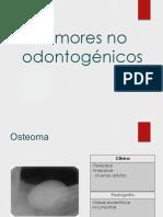 Tumores no odontogénicos