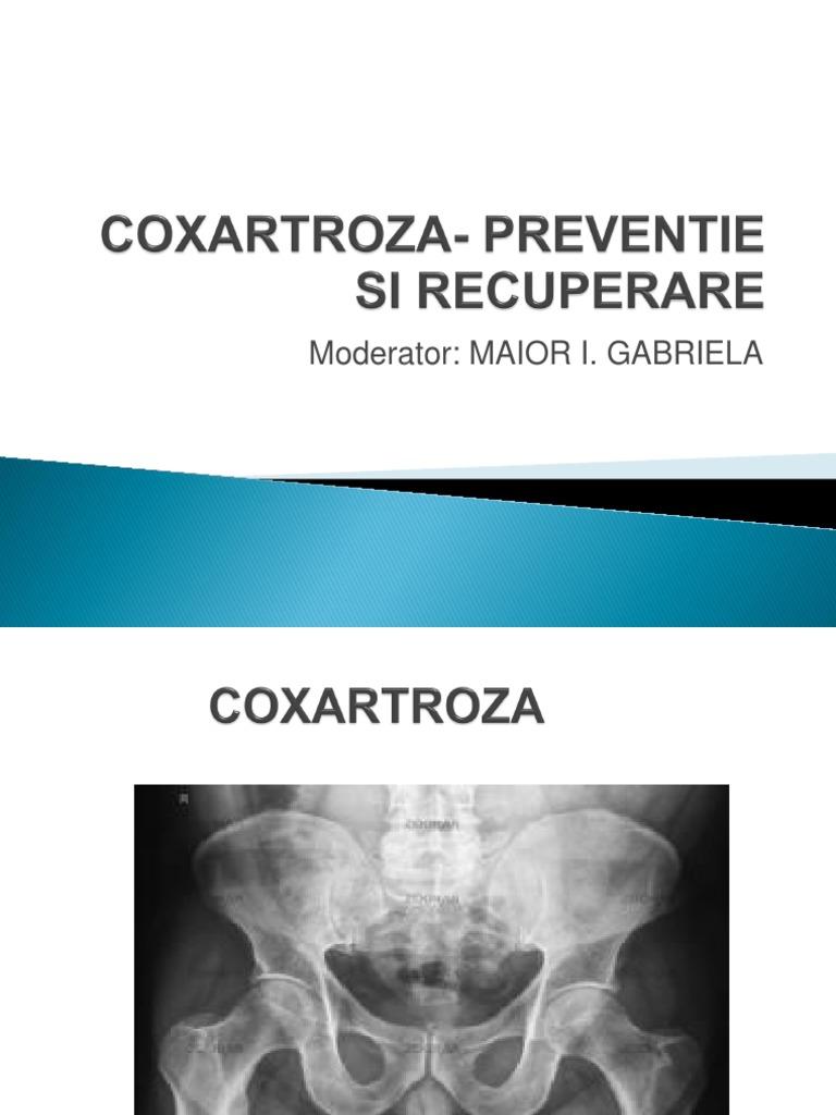 coxartroza tratamentului cu celule stem de șold)