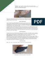 Curing Heel Pain