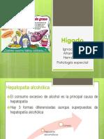 Hígado.pptx