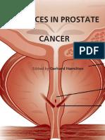 Advances in Prostate Cancer - G. Hamilton (Intech, 2013) WW.pdf