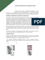 Biomecanica Analitica en Una Luxacion Congenita de Cadera