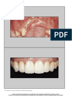 Three-Dimensional Bone and Soft Tissue Requirements for Optimizing Esthetic Results in Compromised Cases With Multiple Implants